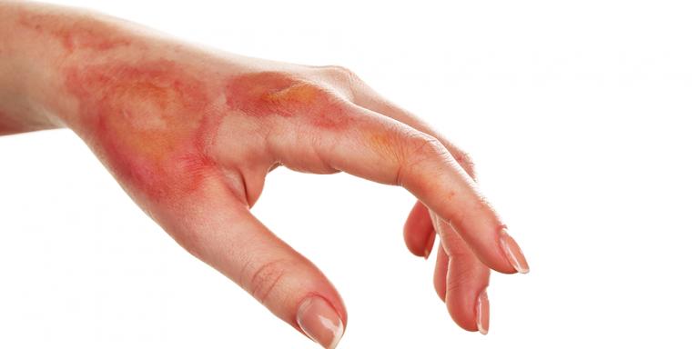 Burnt hand injury